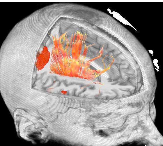 ies-do-not-clone-advanced-visualization-applications-brainwave-aw-brainwave_features_1.jpg