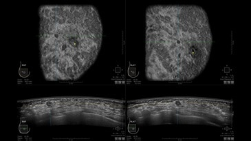 Multi-focal biopsy proven invasive ductal carcinoma