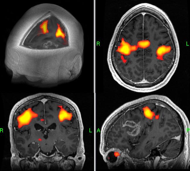 GE Healthcare Brainwave