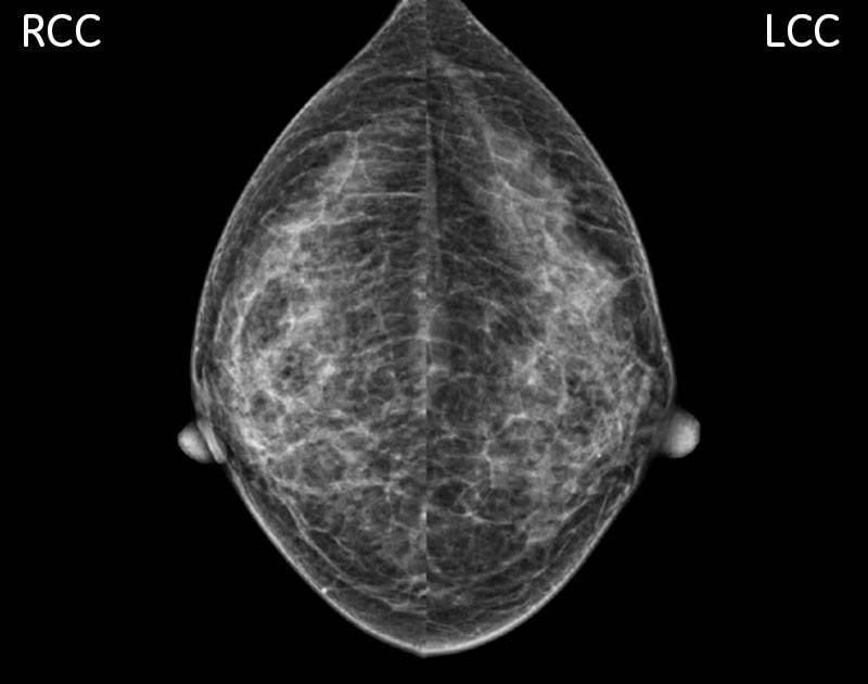 -new-senographe-crystal-senographe-crystal-breast-cancer-screening-and-diagnosis_case3.jpg