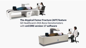Quantifying incipient Atypical Femur Fracture - GE Healthcare Lunar