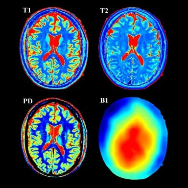 uk images-products-categories-mri-signa pioneer-img 2.jpg