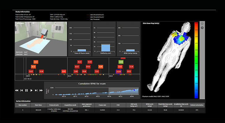 GE Healthcare DoseWatch 3.1 provides an interactive tool to support the post-procedure review.