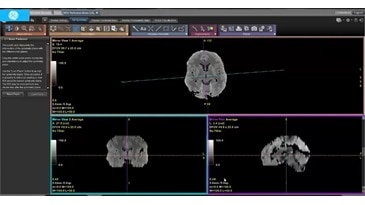 CT Perfusion 4D - CT Brain Stroke Part II - Review Functional Maps