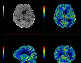 4 scan images of a brain.