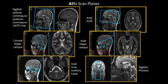 GE Healthcare's AI-based, automated workflow tool for MRI