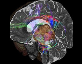 Colored brain scan image.