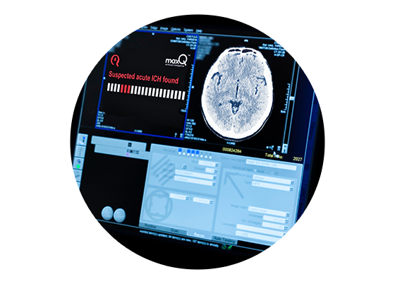 Accipio uses MaxQ AI's platform, providing prioritization (lx), localization and annotation (Ax), and expert-level diagnostic rule-out.
