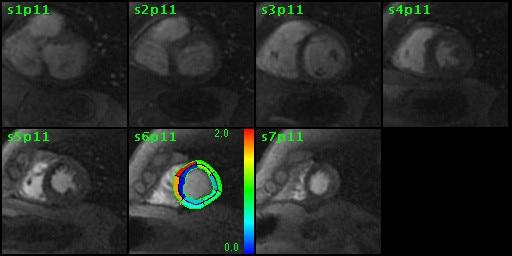 ries-do-not-clone-advanced-visualization-applications-cardiacvx-aw-cardiac-vs_overview_jpg