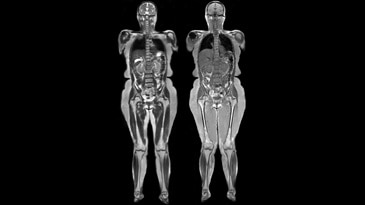 Whole Body imaging with GEM Suite using T1 fsPGR and T2 SSFSE with ARC acceleration.
