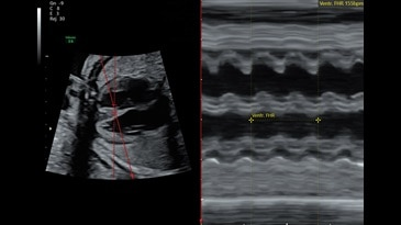 Anatomic M-Mode through 27 week fetal heart