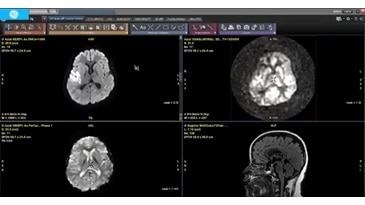 ReadyView Brain Multi Parametric - Diffusion, ASL and Gd perfusion