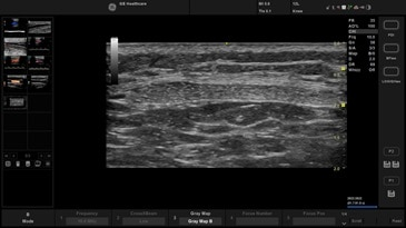 MSK – Knee/Patella