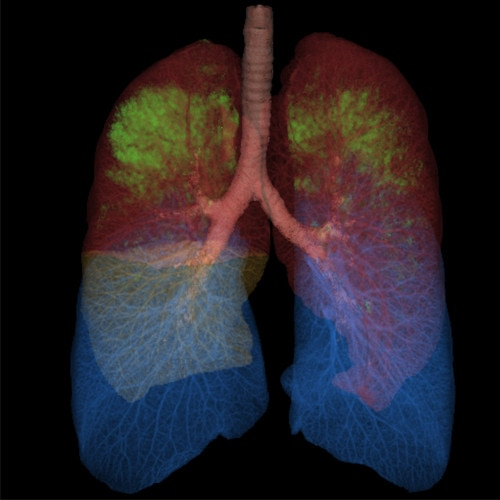thoracic vcar lungs.