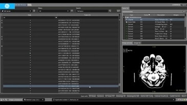 CT Perfusion 4D - CT Brain Stroke Part I - Review Settings & Set Symmetry