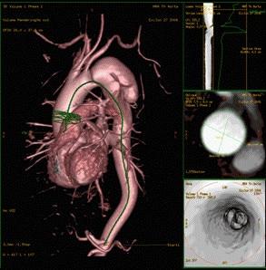 advanced visualization mr vesselIQ xpress.