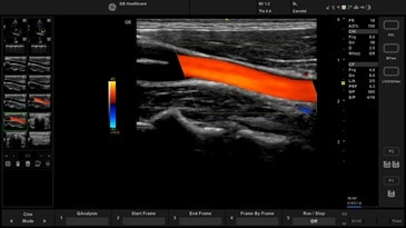 Carotid – color flow