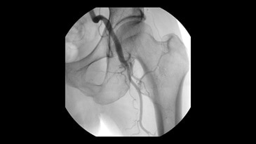Femoral angiography