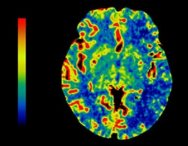 Colored brain scan.
