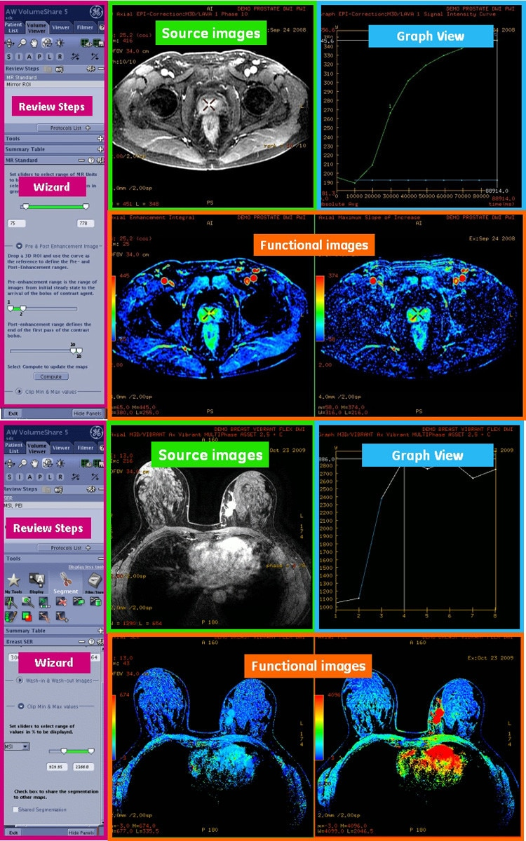 egories-do-not-clone-advanced-visualization-applications-bodyview-aw-bodyview_features.jpg