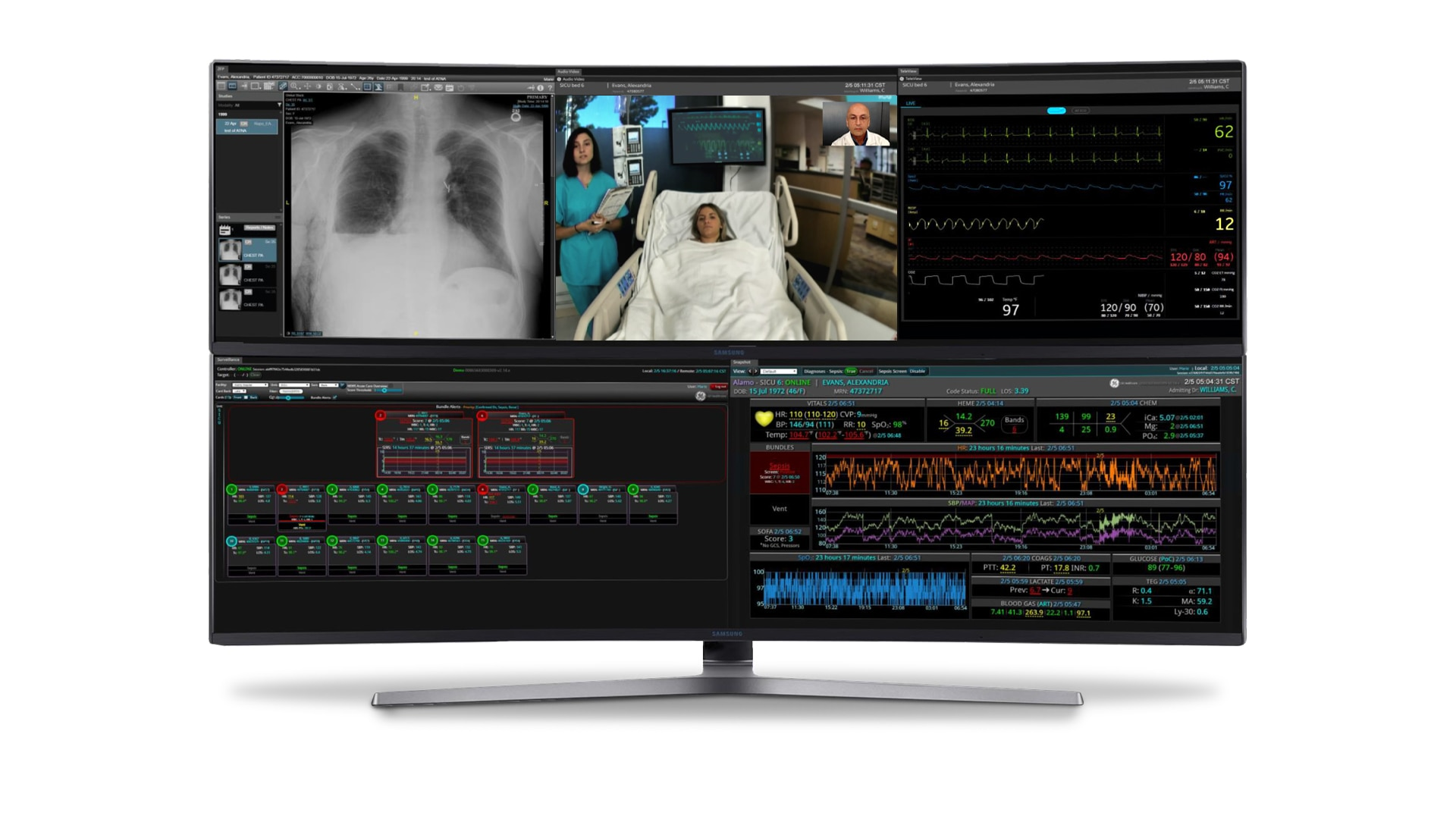 Computer monitor with 5 modules of the Mural Virtual Care Solution