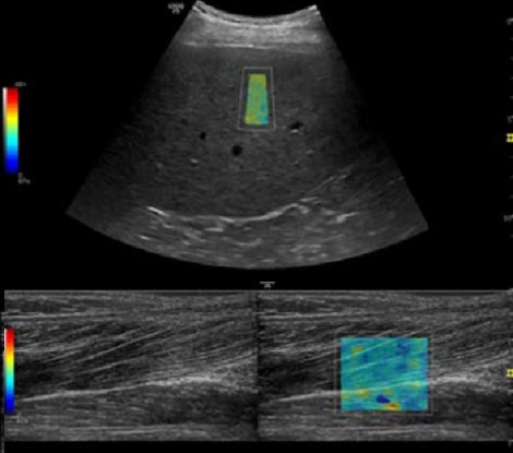 Advanced features with 2D Shear Wave Elastography on LOGIQ P9