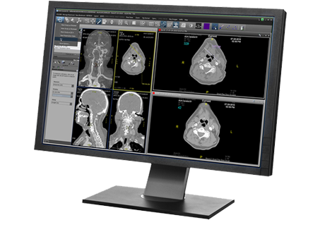 Centricity Universal Viewer | GE Healthcare
