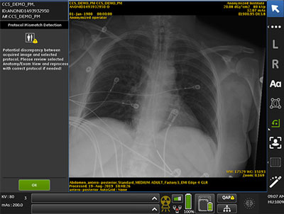 AI critical care suite protocol mismatch x-ray