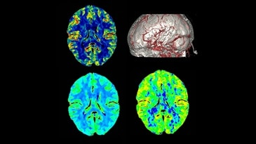 Whole Brain Perfusion and Dynamic 4D CTA