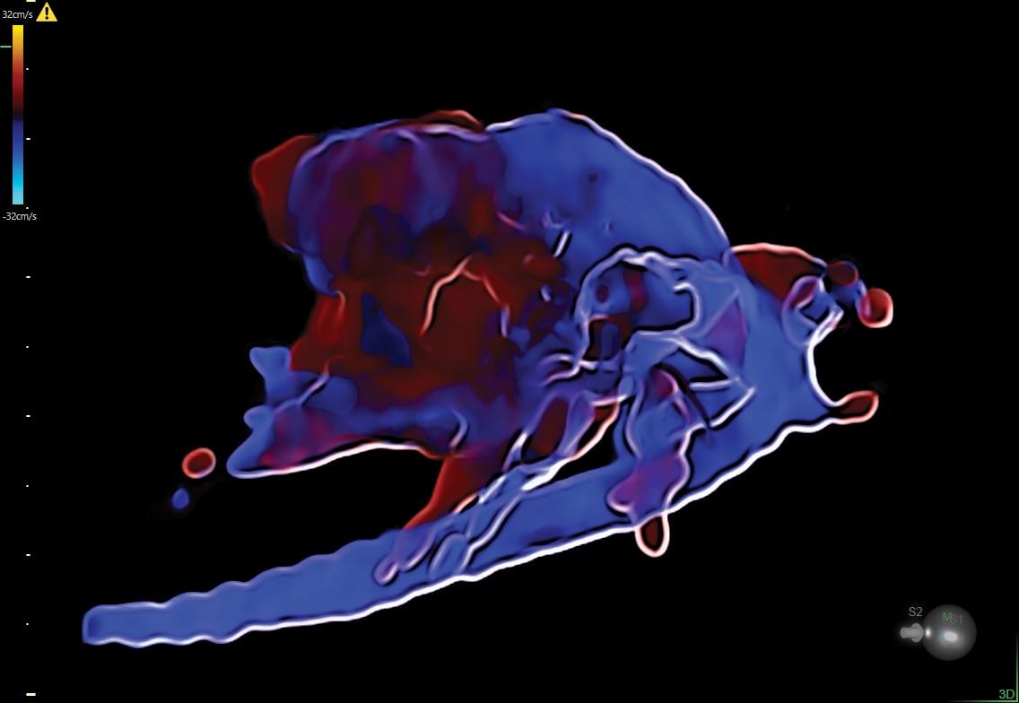 HDlive Flow Silhouette in 29 week fetal heart