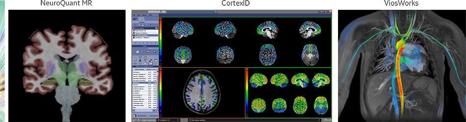 product-product-categories-magnetic-resonance-imaging-signa petmr-Organ.png
