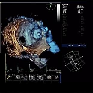 Valve ASSIST 24  for Left Atrial Appendage Closure: Assess