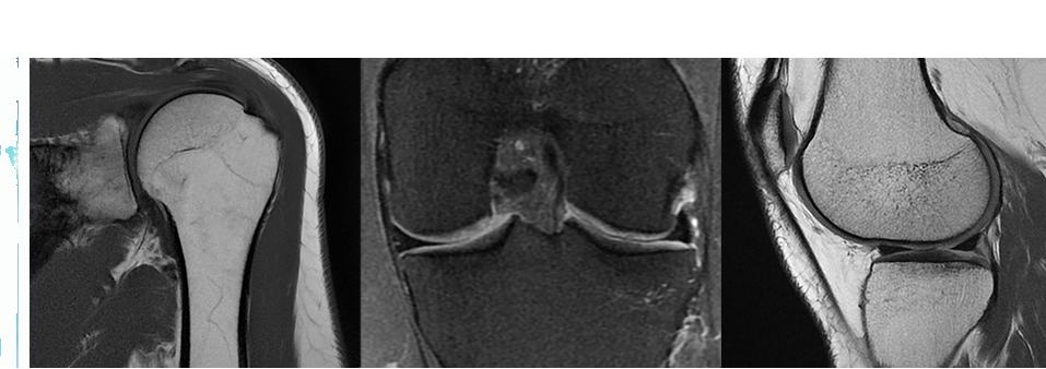 duct-product-categories-magnetic-resonance-imaging-signa artist-shoulderkneecoils_flat.png