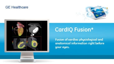 vanced-visualization-product-spec-sheets-cardiq-fusion-gehc-datasheet_aw-cardiq-fusion_pdf