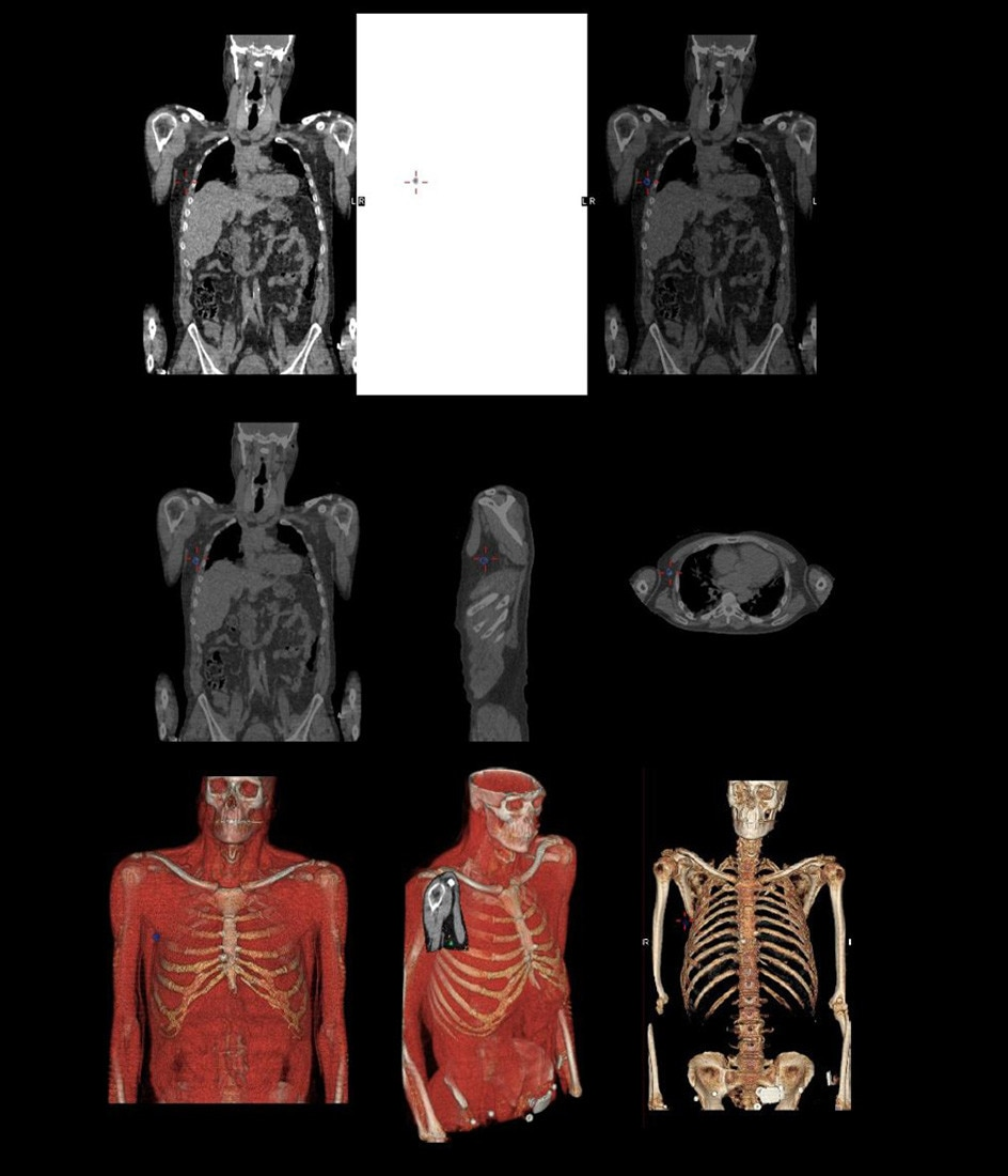 Optima NM/CT 640 Clinical Image Library