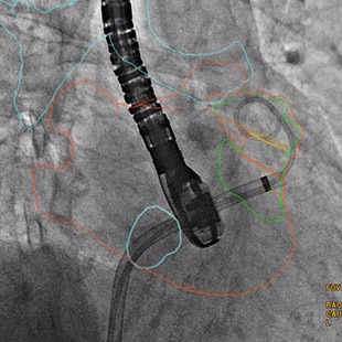 egories-interventional-x-ray-igs-for-interventional-cardiology-guide-valve-assist-laac.jpg