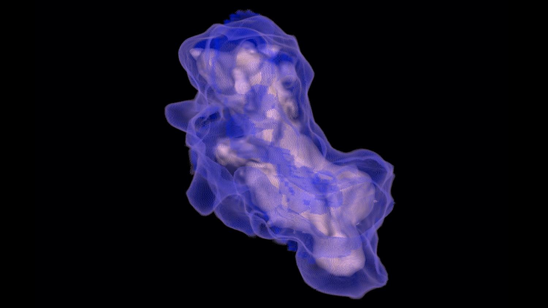 advanced visualization lung vcar.