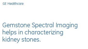alization-case-studies-gsi-viewer-gehc-case-study_aw-gsi-kidney-stone-characterization_pdf