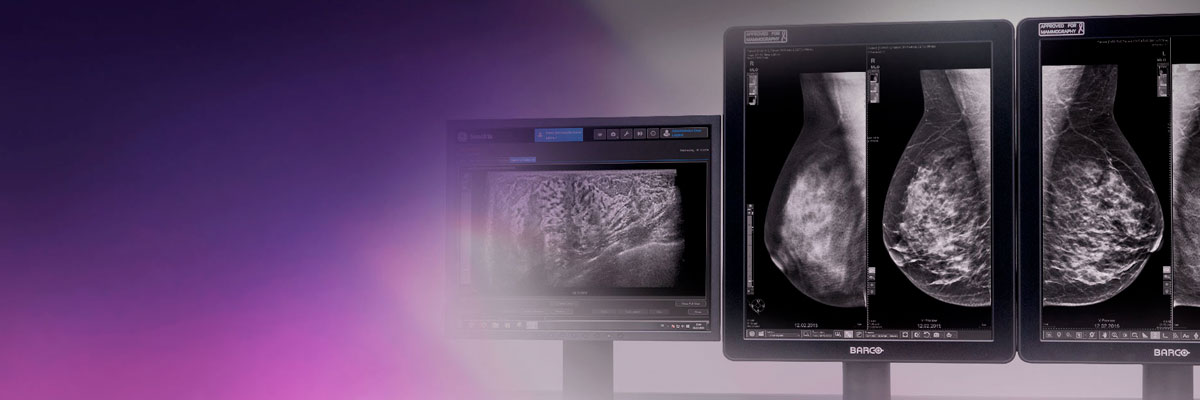 t-categories-mammography-mammography-new-banner-Mammo-application-and-solutions_banner.jpg