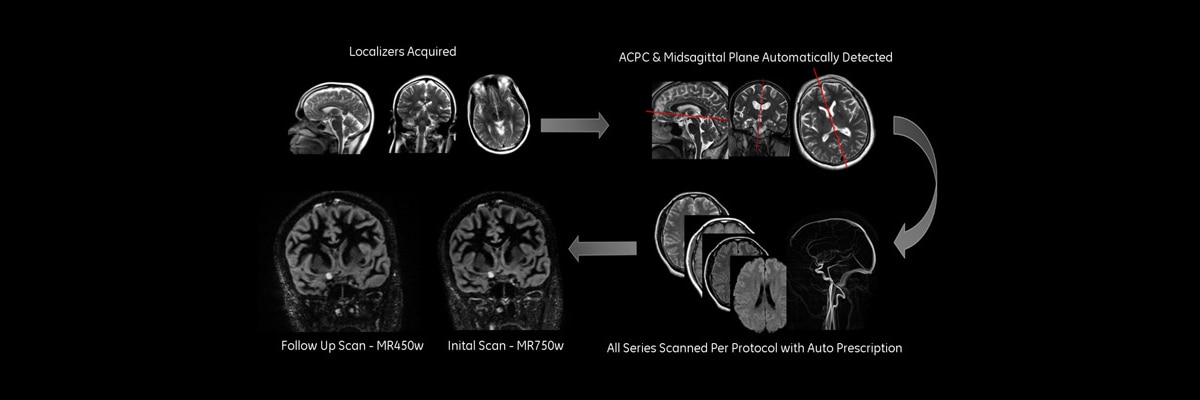 product-product-categories-magnetic-resonance-imaging-neuro-imaging-ready-brain-ready brain_ spotlight new.jpg