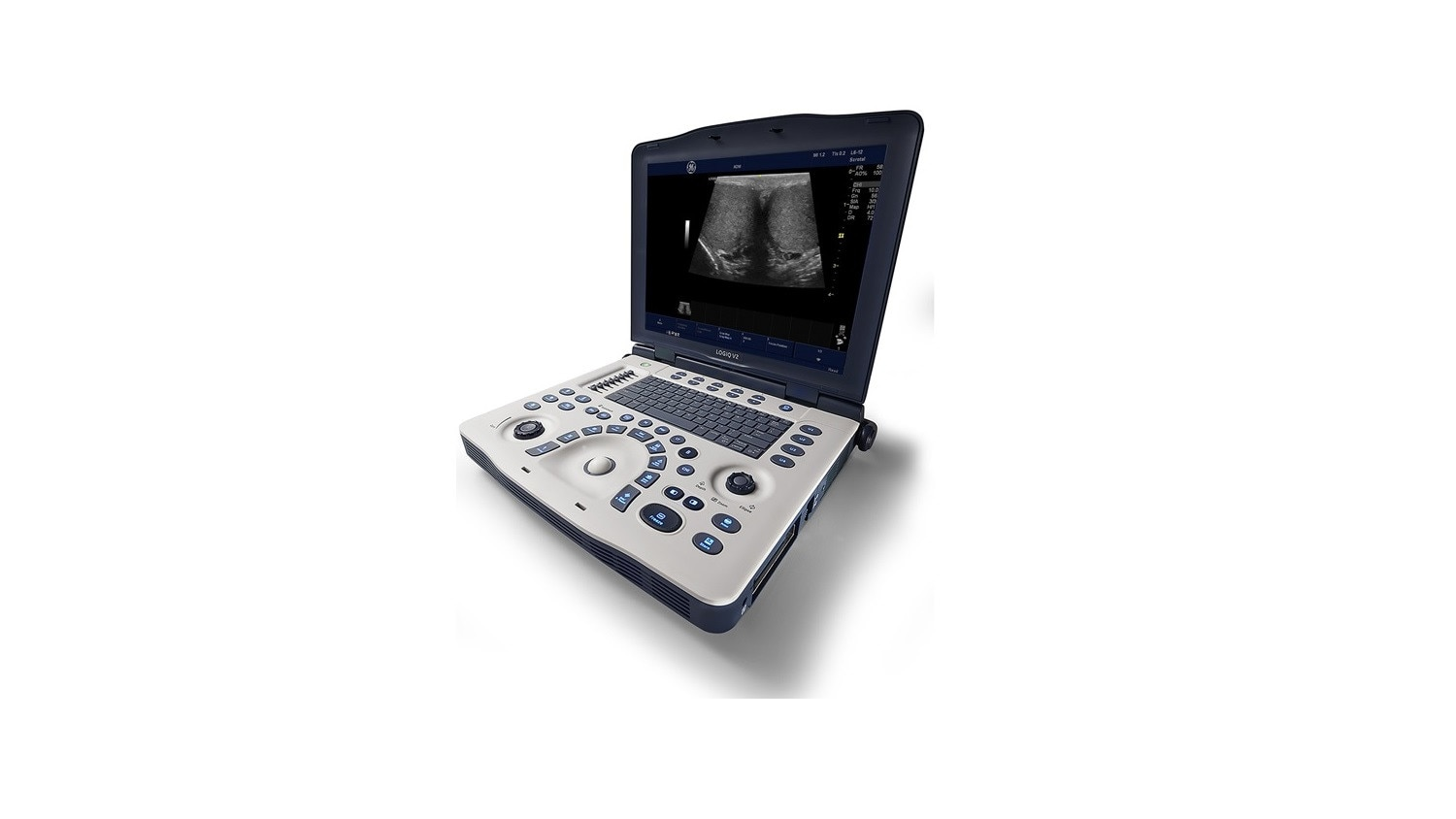 product-product-categories-ultrasound-urology-logiq v2 for ultrasound.jpg