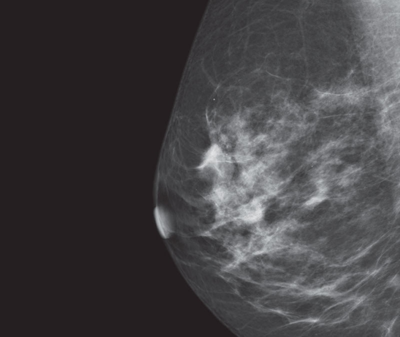 hy-mammography-new-seno-claire-thumbnails-senoclaire_breast-imaging-clarity-thumbnail1.jpg