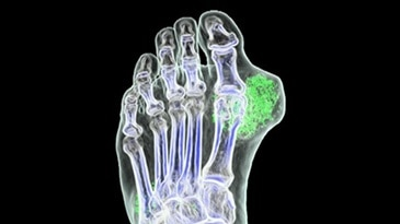 Gout visualization