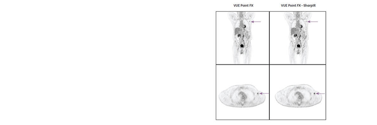 product-product-categories-pet-ct-vue-point-1-clinical-vue_point_fx_sharp_ir_clinical.jpg