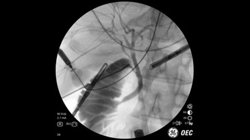 Operative Cholangiogram