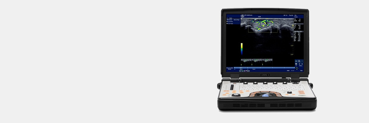t-product-categories-ultrasound-point-of-care-new-logiq-e-ultrasound-main-image_080615.jpg