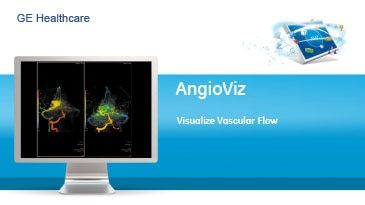 roducts-advanced-visualization-product-spec-sheets-angioviz-gehc-datasheet_aw-angioviz_pdf