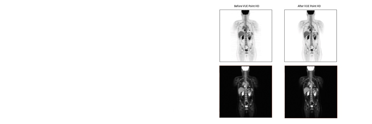 product-product-categories-pet-ct-vue-point-vue_point_hd_before_after.jpg