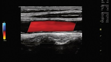 Carotid image with Color Doppler using L3-12-D