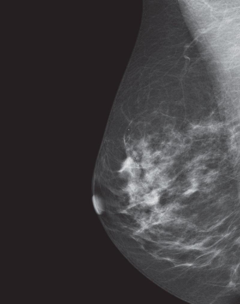 es-mammography-mammography-new-seno-claire-senoclaire_breast-imaging-sensitivity-case1.jpg